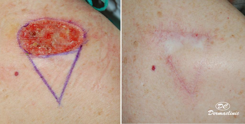 Carcinoma basocelular espalda