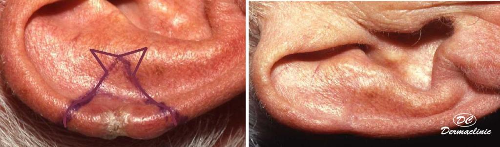 Carcinoma basocelular oreja