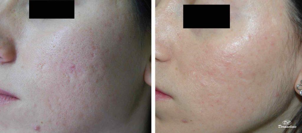 Cicatrices por acné
