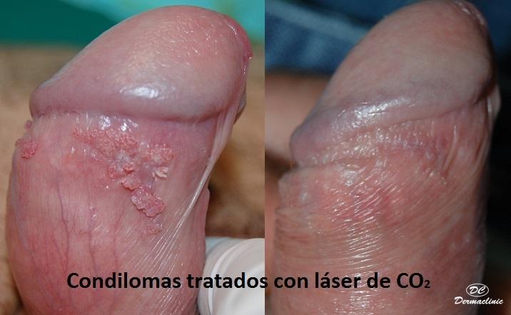 Condilomas láser dermaclinic