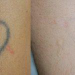 Laser para tatuajes Dermaclinic