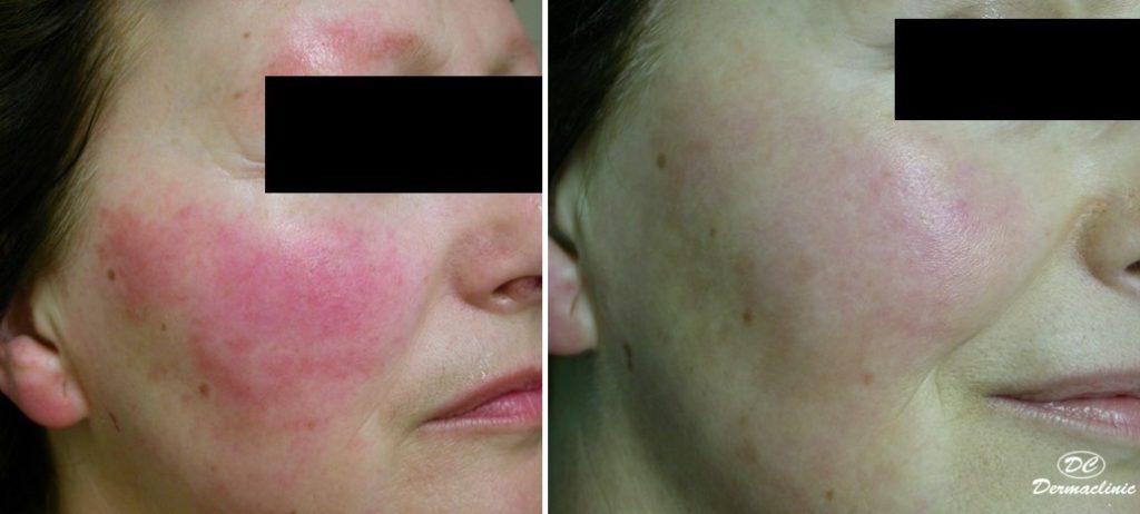 Tratamiento del enrojecimiento facial en Dermaclinic