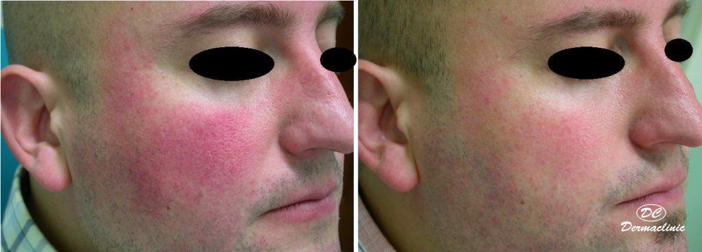 Eritema facial tratado con láser Vbeam