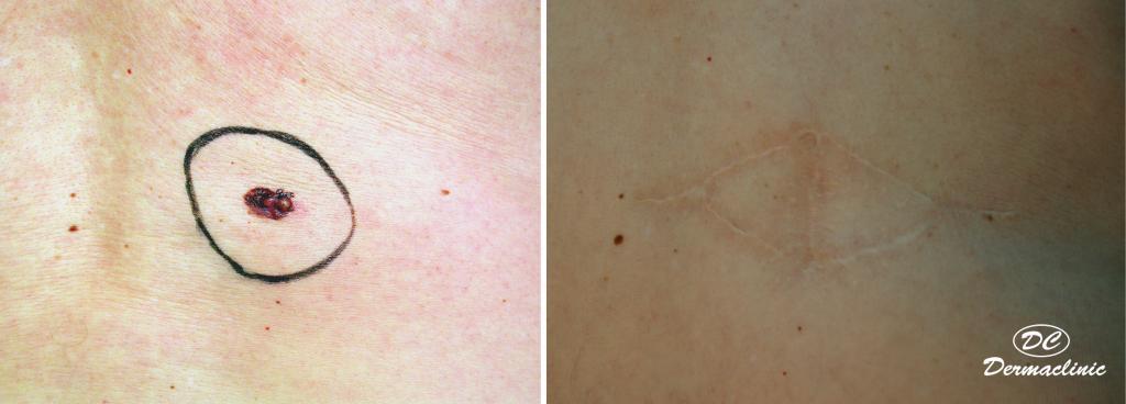 Melanoma en espalda