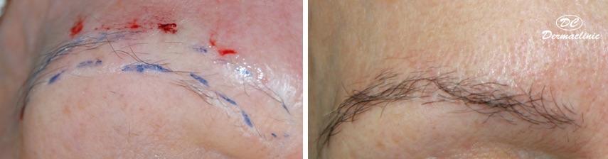 Trasplante de pelo de ceja