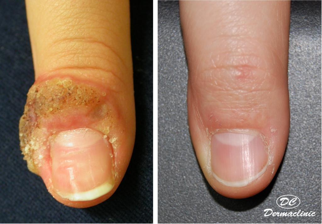 Verruga dedo