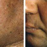 acantosis nigricans dermatologo logroño