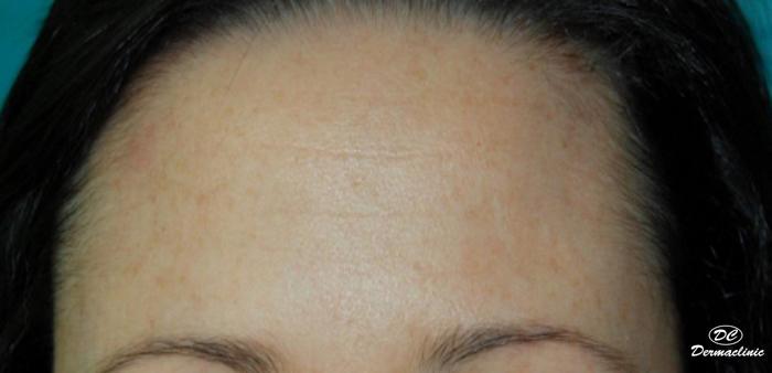 botox despues dermaclinic