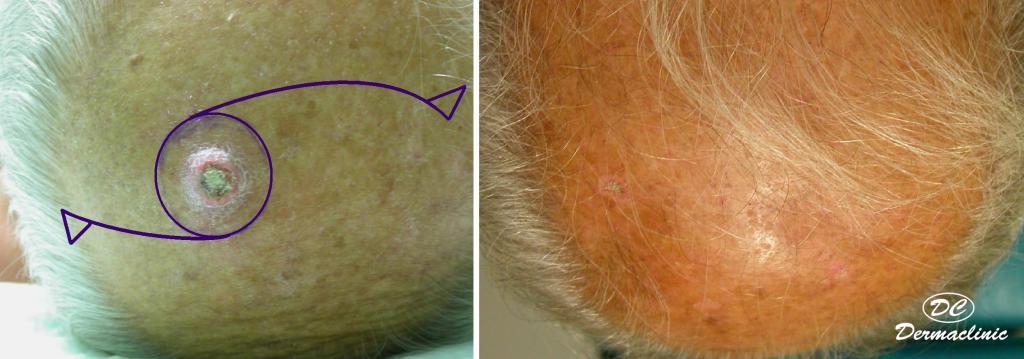 carcinoma epidermoide cabeza 3