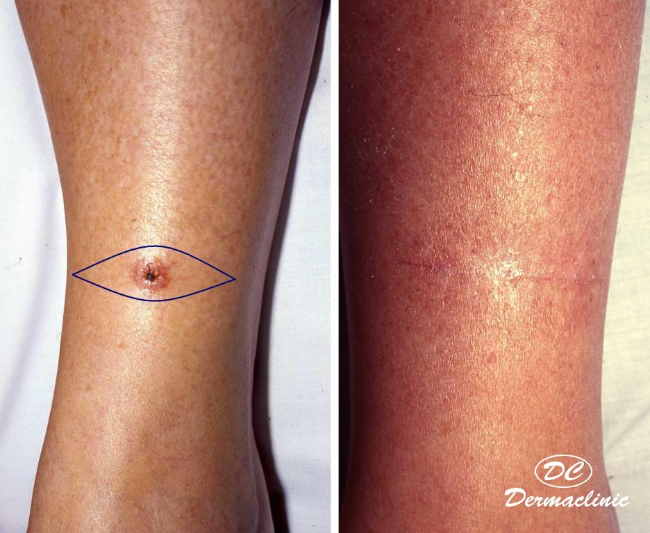 carcinoma epidermoide pierna