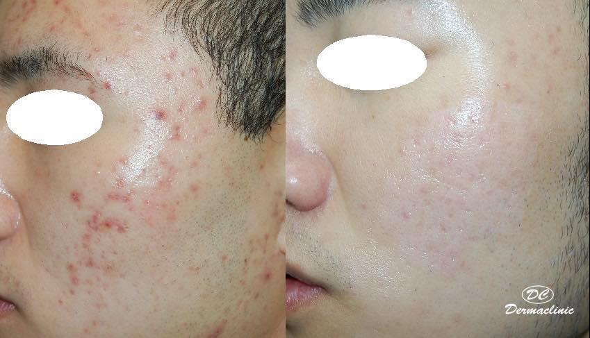cicatrices acné cara tratamiento