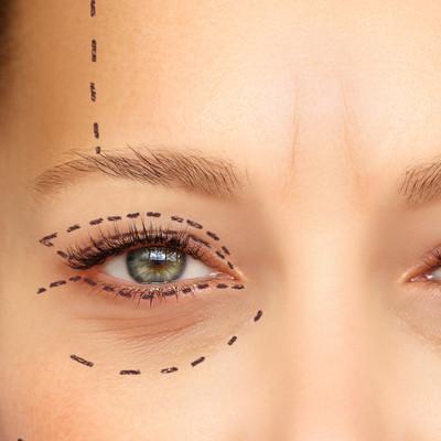 cirugia estética dermaclinic