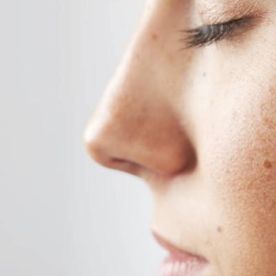 cirugía de la nariz en dermaclinic
