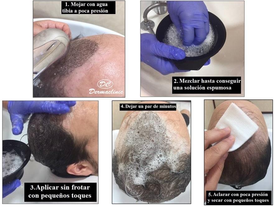 cuidados despues de un trasplante de pelo