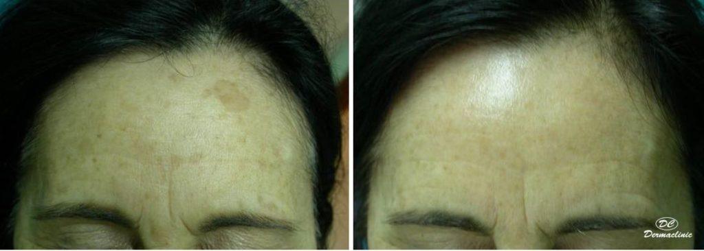 laser manchas marrones dermaclinic