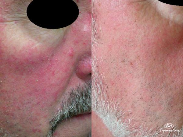 Láser para rosacea en Dermaclinic