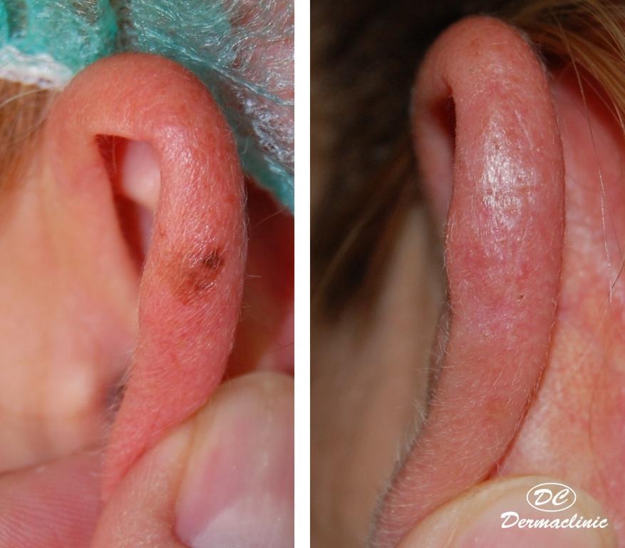 melanoma oreja