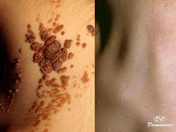 nevus epidermico en dermaclinic