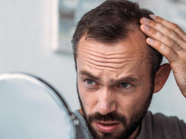 Preguntas trasplante de pelo