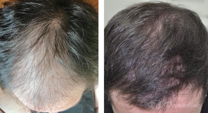 resultados trasplante de pelo dermaclinic