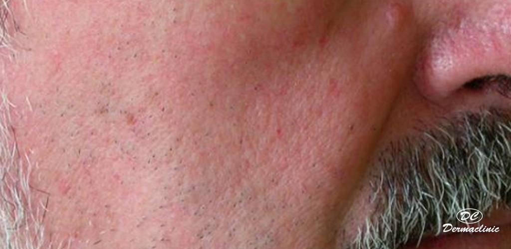 rosacea antes y despues laser dermaclinic