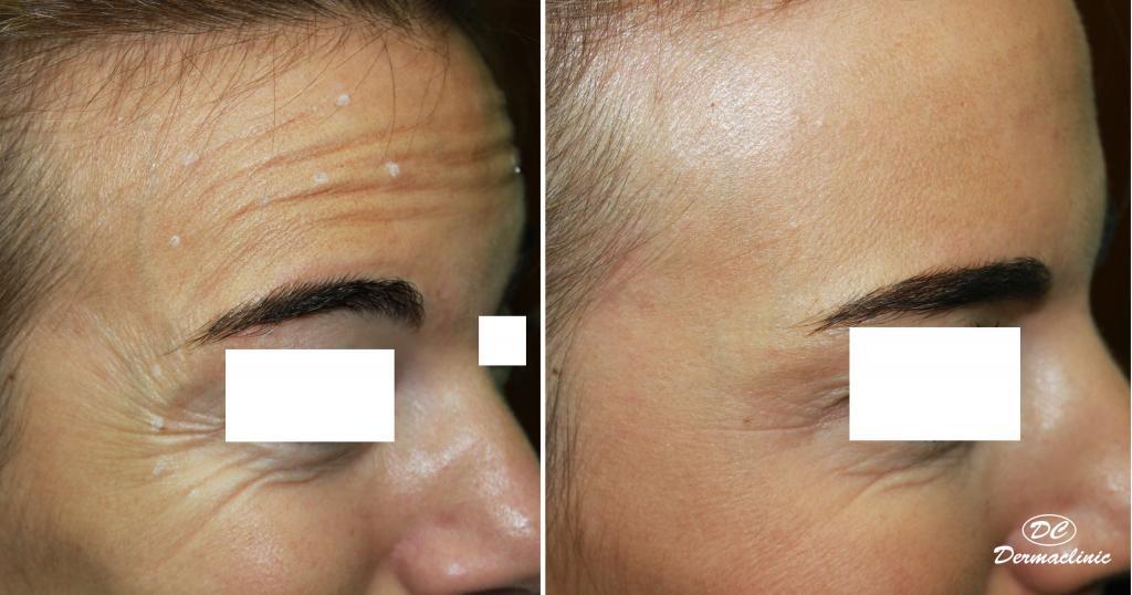toxina-botulinica-dermatologia