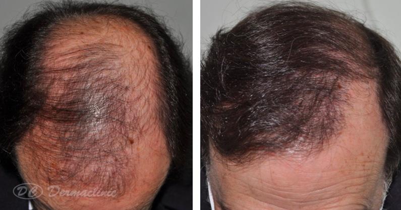 trasplante antes y despues dermaclinic