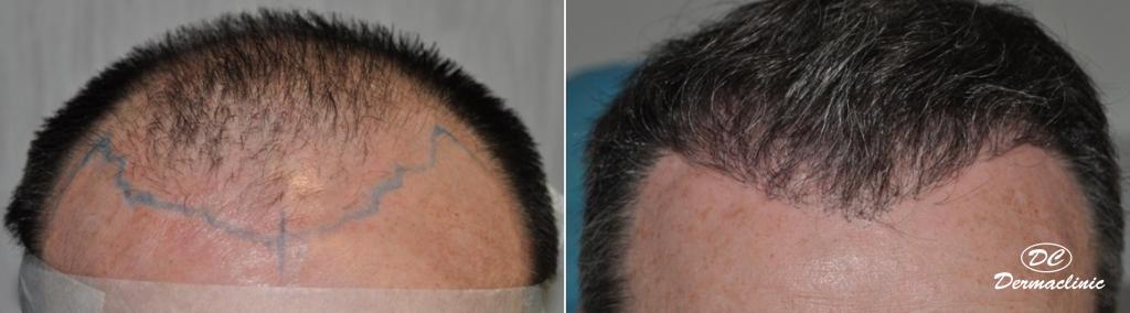 Trasplante de pelo a los 6 meses