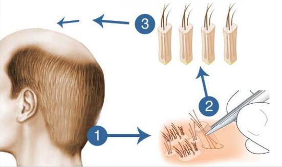 trasplante de pelo en logroño