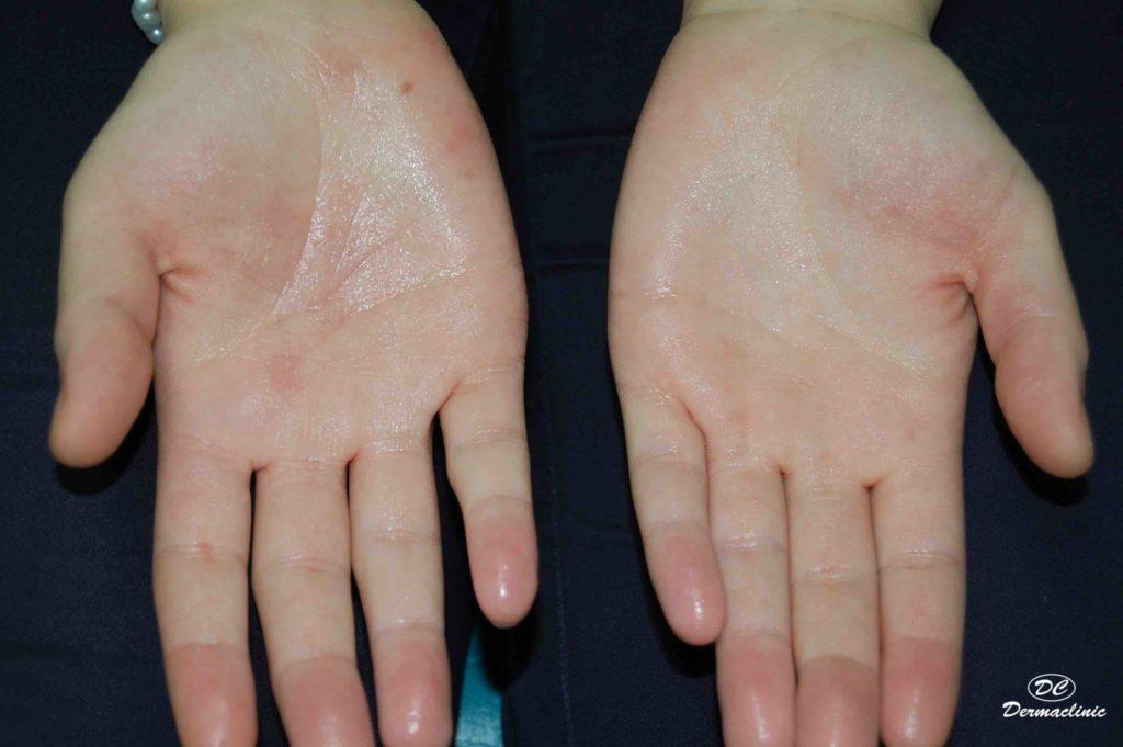 Tratamiento del exceso de sudor (hiperhidrosis) en Dermaclinic